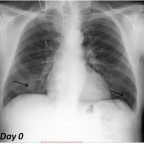 Day 0 - Posteroanterior and lateral chest radiographs