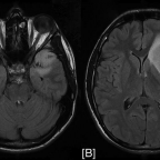 Preoperative MRI FLAIR images