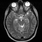 MRI T2 weighted images of the head