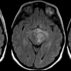 Follow-up brain MRI obtained 3 months later. Axial T2-FLAIR-weighted (A) and axial contrast-enhanced T1-weighted (B) images. Progressive disease with multiple new expansile infiltrating FLAIR-hyperintense lesions with ring enhancement in the brain with extension into the pre-chiasmatic segment of the left optic nerve as well as the optic chiasm.