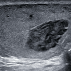 B-mode imaging demonstrates a heterogenous mass in the upper pole of the left testis.