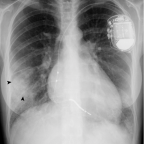 Chest radiographs in posteroanterior (a) and lateral (b) incidences, showing bilateral ill-defined opacities with basal predo