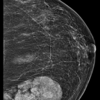 Mammogram shows circumscribed, oval mass, heterogeneously dense mass containing radiolucent (fat) and radiopaque (soft tissue